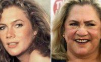 Kathleen Turner rechaza las cirugías plásticas para no parecerse a Cher